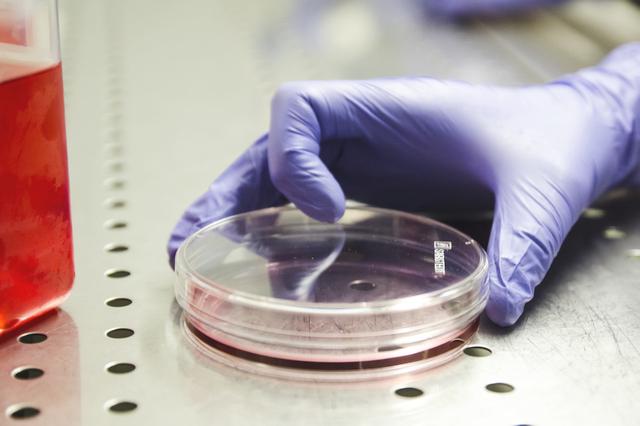 radioter per tumore alla prostata