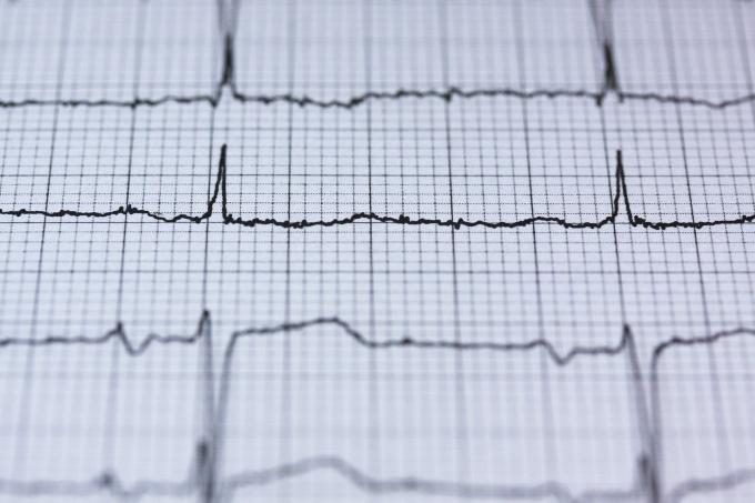 Alto rischio di scompenso cardiaco in caso di infarto..